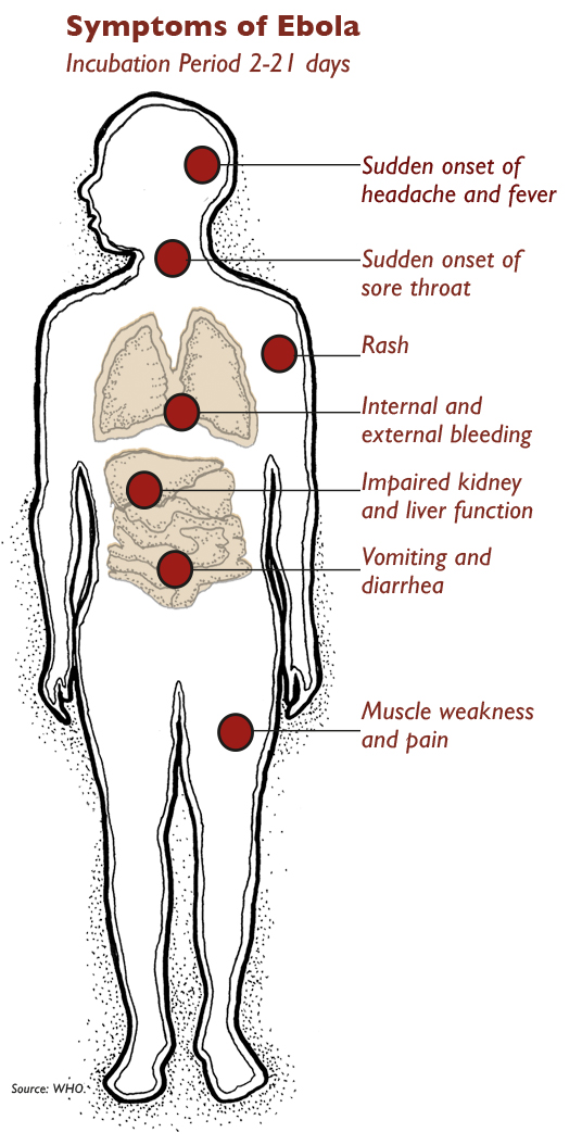 Ebola is a hemorrhagic disease, meaning it can cause victims to bleed profusely from all body openings. Victims also produce copious amounts of bodily fluids — mucus, vomit, diarrhea — which helps the virus spread quickly and easily.